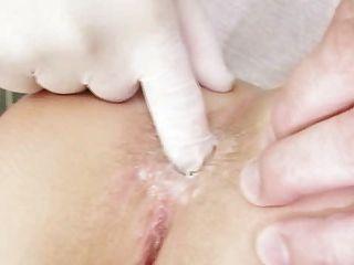 рыжая девушка киска осмотр курчавой гинекомастии врача